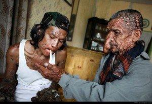 Uomo corteccia: lo strano caso di Dede Koswara