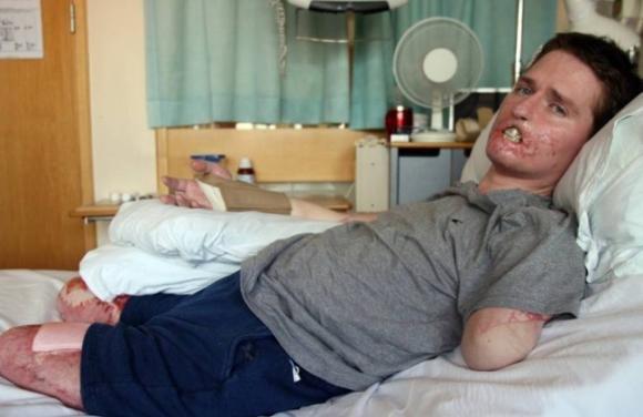 Alex Lewis: un batterio carnivoro divora il suo corpo