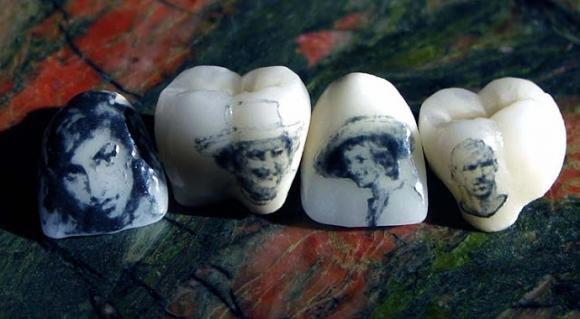 Tatuaggi sui denti, il nuovo sistema dall'Inghilterra