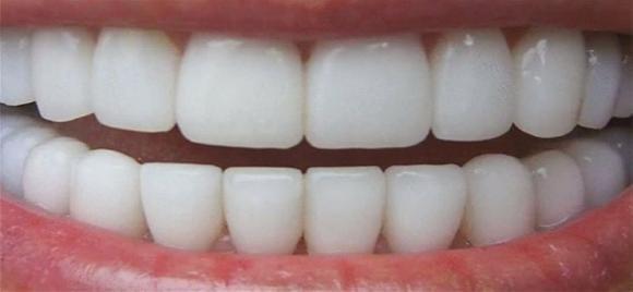 Come sbiancare i tuoi denti in 3 minuti!