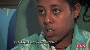 Ragazza etiope convive per 17 anni con gemello parassita