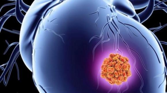 Individuata la proteina che ripara il cuore dopo un infarto