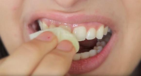 Ecco un trucco per sbiancare i denti in modo naturale