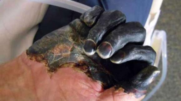 Torna la peste bubbonica: il primo caso dopo 27 anni