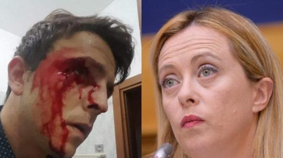 Giorgia Meloni esprime solidarietà a Danilo D'Amico, dirigente di FdI a Ponza, vittima di una gravissima aggressione
