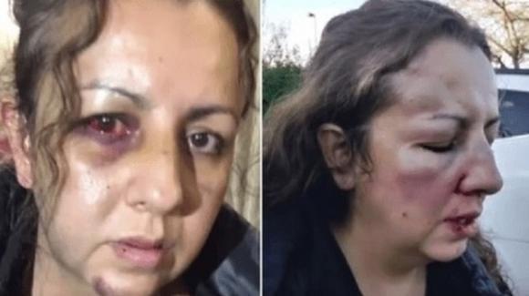 USA: mamma picchiata perché voleva denunciare gli atti di bullismo contro la figlia