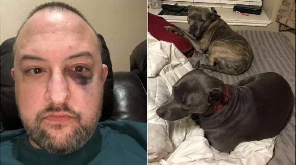 Due pitbull adottate salvano la vita al proprietario durante una rapina