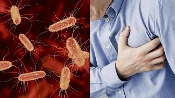 Ricercatori italiani scoprono la correlazione tra infarto e batterio dell'Escherichia Coli