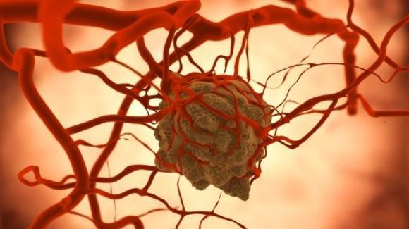 L'allarme dell'OMS: nei prossimi 20 anni i casi di tumore potranno aumentare del 60%