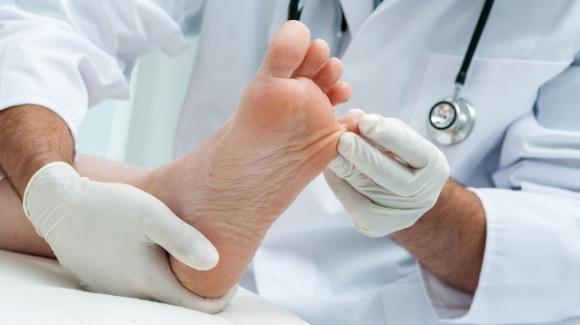 Scoperta correlazione tra Covid-19 e lesioni cutanee sui piedi