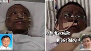 Coronavirus, medici cinesi contagiati si risvegliano con la pelle scura