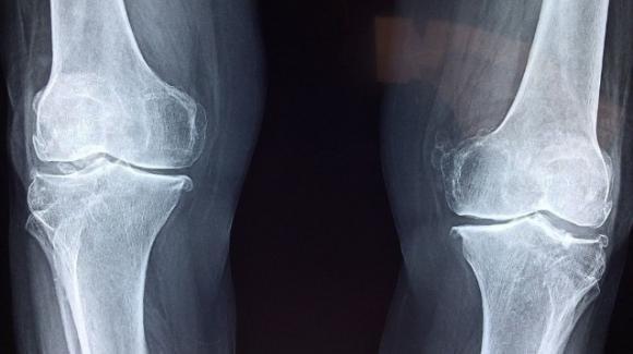 Rigenerare le cartilagini danneggiate con un microcerotto