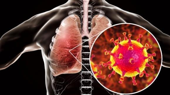 Coronavirus, danni irreversibili ai polmoni per il 30% dei pazienti guariti