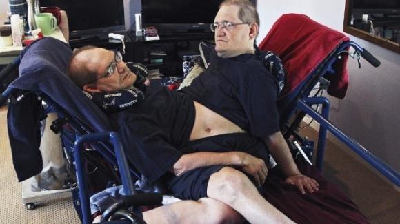 USA. Muoiono a 68 anni i gemelli siamesi più vecchi al mondo, Ronnie e Donnie Galyon