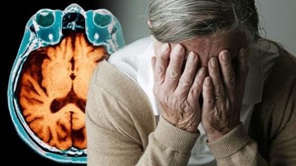 Alzheimer, un test ne permetterà la diagnosi con 20 anni d'anticipo