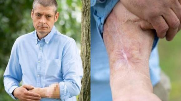 Inghilterra: perde il pene per un'infezione, i medici glielo ricostruiscono sull'avambraccio