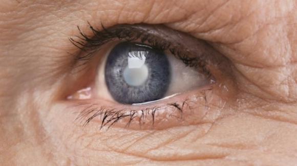 Speranze contro il glaucoma: isolate staminali del nervo ottico