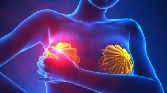 Tumore al seno, obesità e sovrappeso riducono l'efficacia della chemioterapia