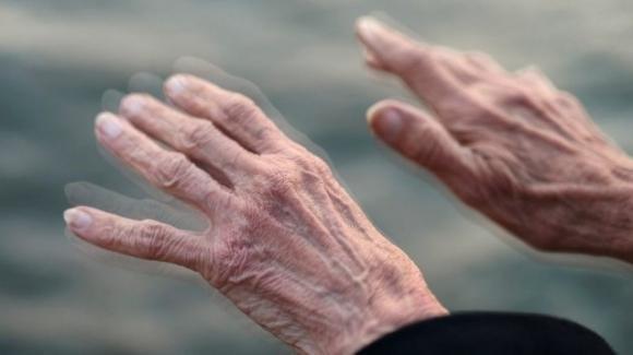 Uno studio australiano rivela che il Covid-19 potrà favorire l'insorgenza del Parkinson