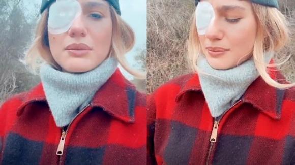 Cristina Marino ferita a un occhio: l'incidente con la figlia Nina
