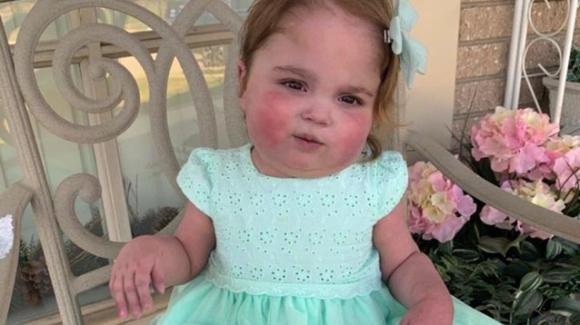 USA: Valentina Garnetti, 2 anni, lascia l'ospedale dopo 694 giorni di ricovero