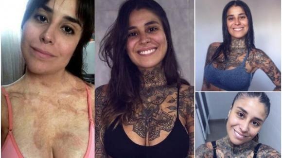 Copre le ustioni del corpo con i tatuaggi: la rinascita di Lali Juarez