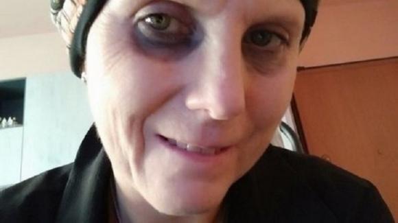 Malata di tumore: madre naturale accetta test, speranza di cura per Daniela Molinari