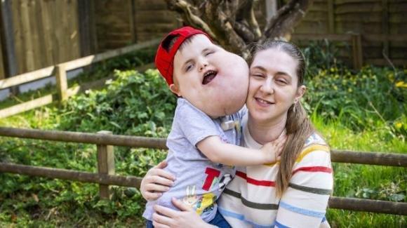 UK: bambino di 4 anni con una ciste gigante sul viso riesce a camminare dopo 8 interventi