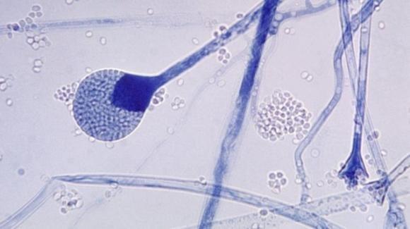 """La mucormicosi, il """"fungo nero"""" che sta uccidendo i malati di Covid in India"""