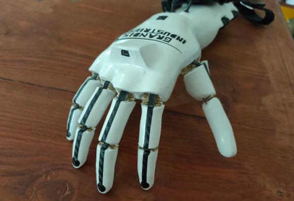 Torino, perde la mano e la vista: l'amico costruisce per lui una mano robotica