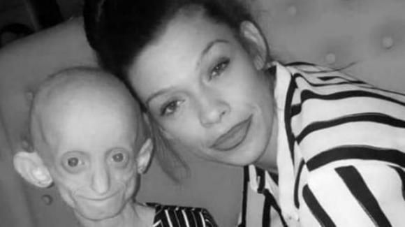"""UK: muore ragazza 18enne affetta dalla """"malattia di Benjamin Button"""""""