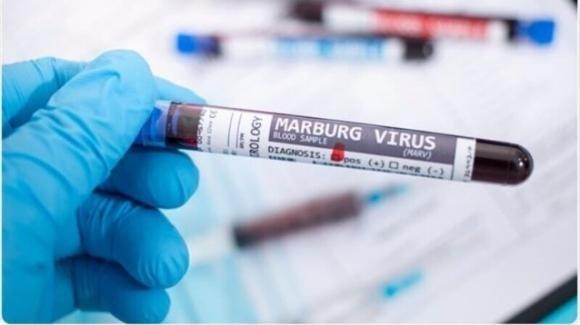 Africa, morto il primo paziente a causa del virus Marburg: è altamente infettivo