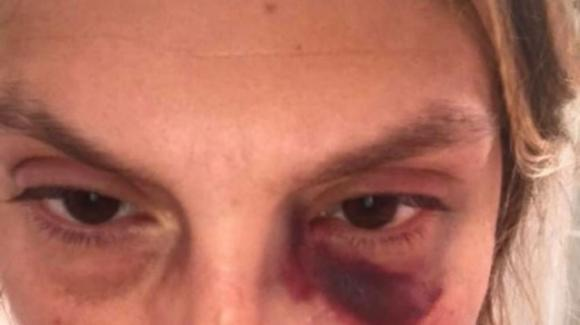 Turista picchiata a sangue da 4 persone per aver aiutato dei cani randagi