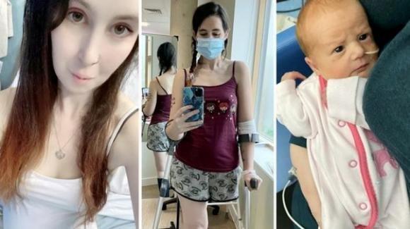 UK, 28enne scopre di avere il cancro in gravidanza e si amputa la gamba per poter partorire