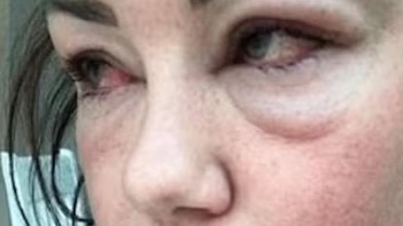 Michelle Heaton: la cantante rivela gli effetti devastanti dell'alcol sul suo corpo