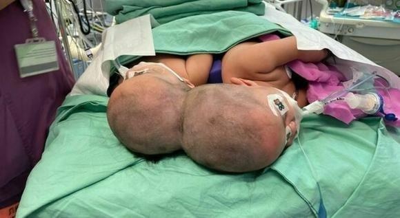 Israele, gemelle siamesi unite dalla testa vengono separate dopo un intervento di 12 ore