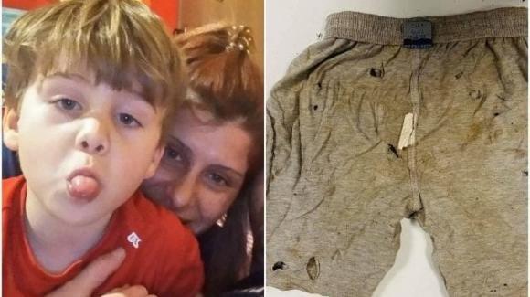 Daniele Mondello pubblica le foto dei pantaloni di Gioele: sono crivellati di buchi