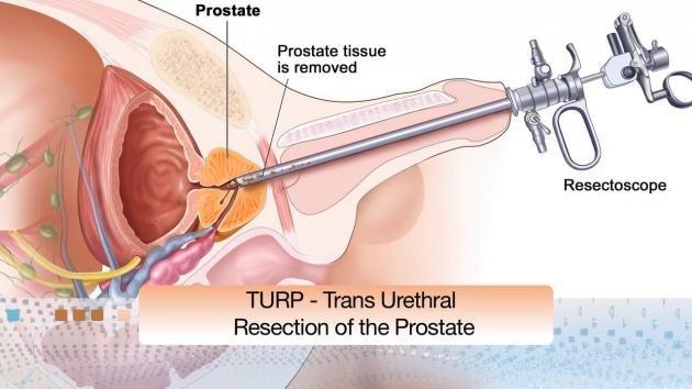 prostata ingrossata alimenti da evitare