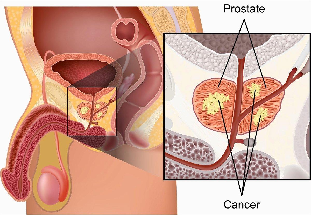 cancro alla prostata tra uomini afroamericani