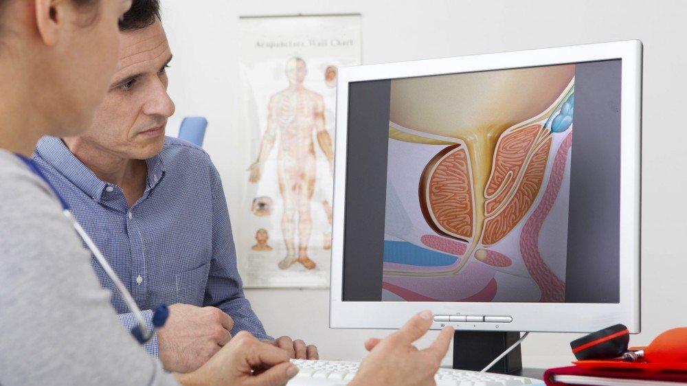ipertrofia prostatica benigna volume prostatico