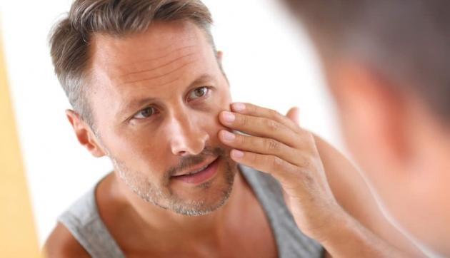 Cicatrici acne: ecco come eliminarle. Laser o rimedi naturali?