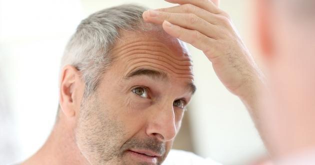 Trapianto di capelli: ecco come funziona, i costi e dove farlo