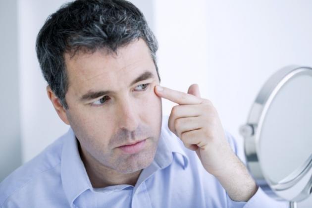 Calazio all'occhio: cause, cure ed i rimedi naturali