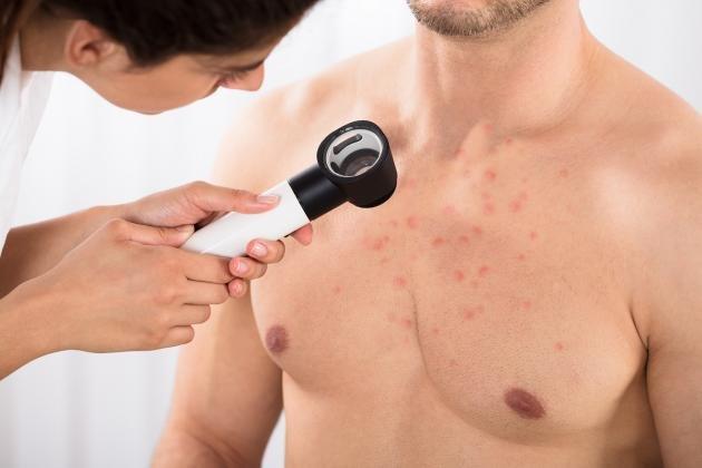 Fuoco di Sant'Antonio: sintomi, cause e cure per l'herpes zoster