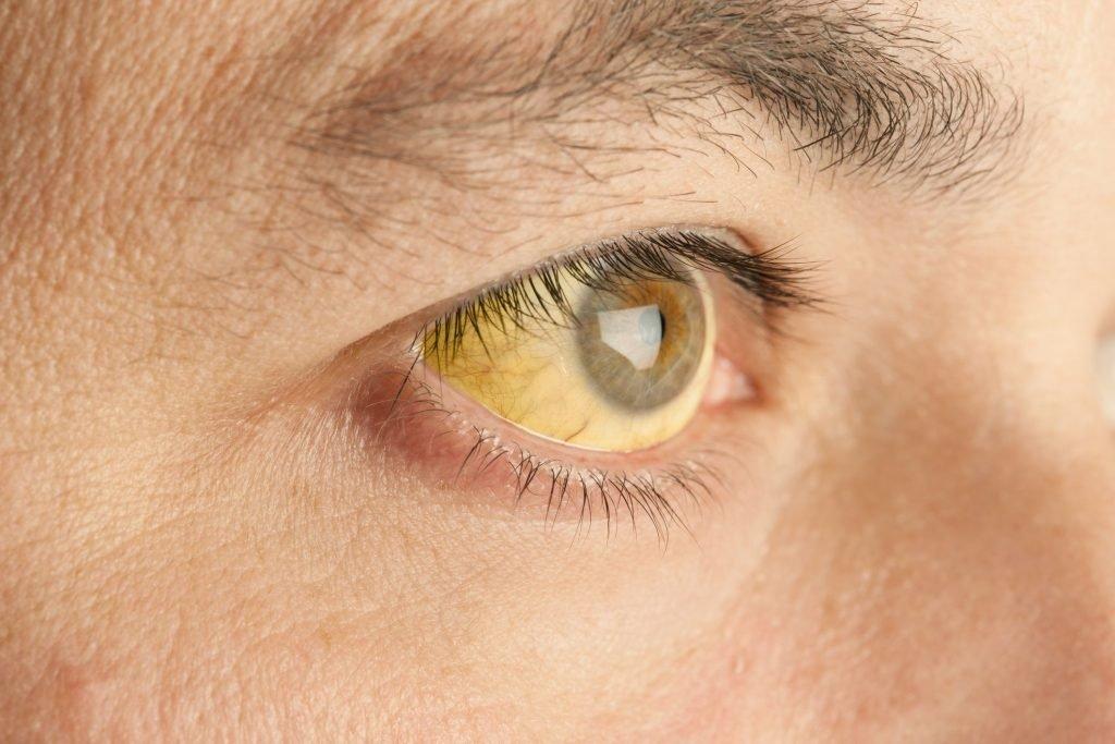 cane pipì giallo scuro dolore alla prostata e occhi gialli