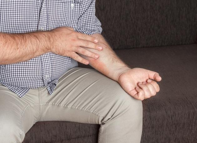 Dermatite da stress: come si manifesta e come si cura