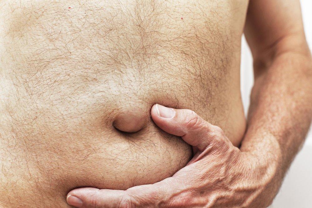 gonfiore addominale dopo intervento prostata