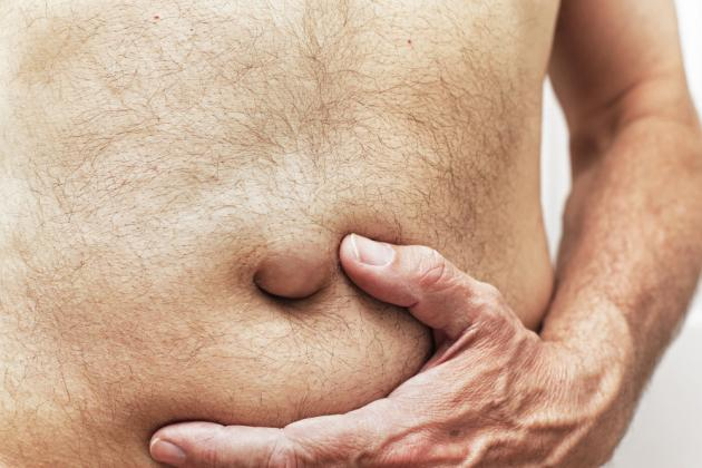 Ernia ombelicale nell'adulto: i sintomi, le cause e cosa fare