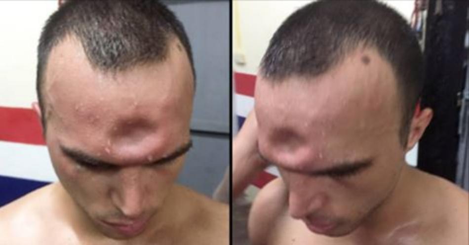 Gli rompono la testa ma continua a combattere: le immagini sono terrificanti