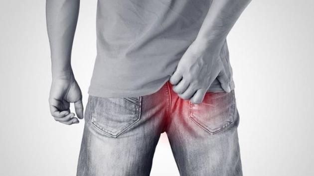 Bruciore anale: cause principali e rimedi